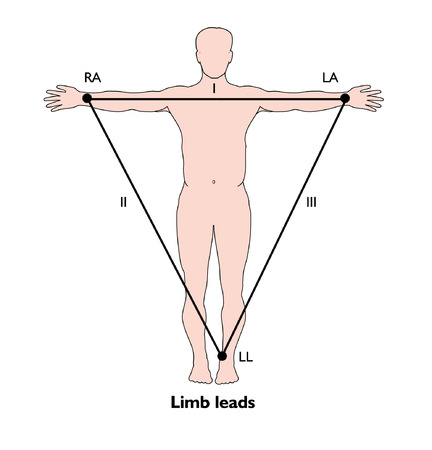 ECG EKG limb lead points