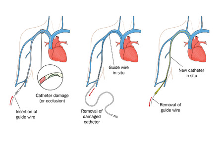 Drawing to show replacement of a damaged peripherally inserted central catheter  PICC  Illustration