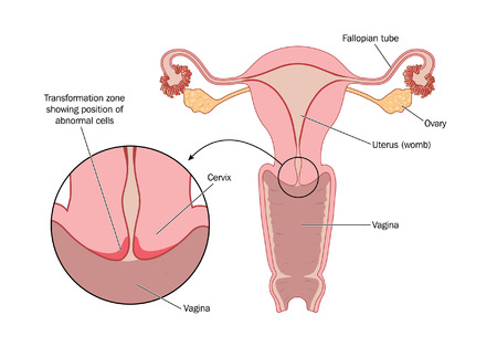 Transformation zone of cervix Illustration