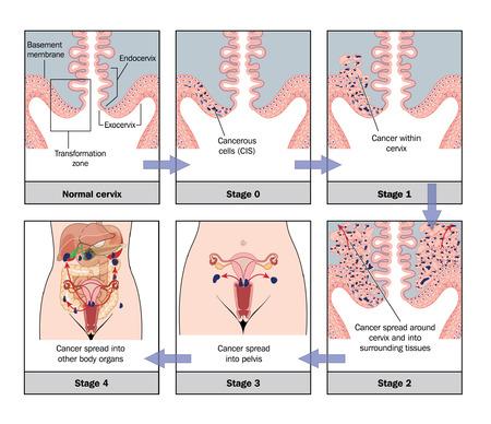 Desarrollo de c�ncer de cuello uterino