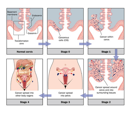 staging: Development of cervical cancer