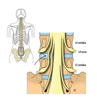 척수: 요추 및 천추 신경의 드로잉