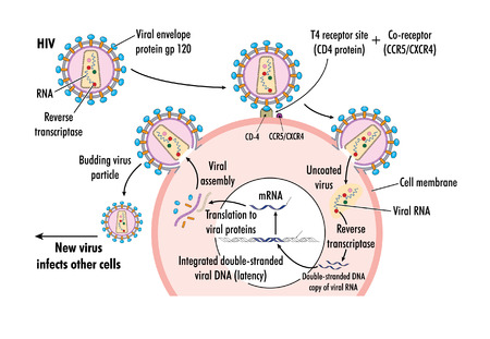 Drawing of HIV virus infection