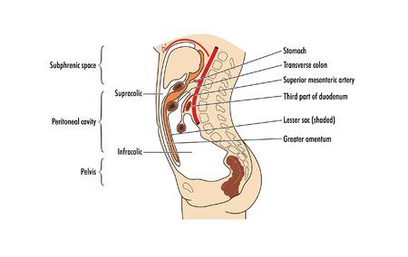 peritonitis: Drawing of the peritoneal cavity