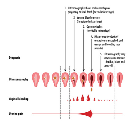 vaginal: Stages and detection of miscarriage