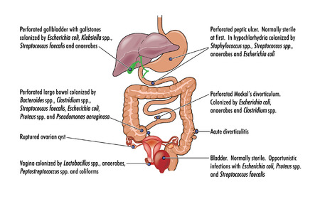 cyst: Causes of peritonitis