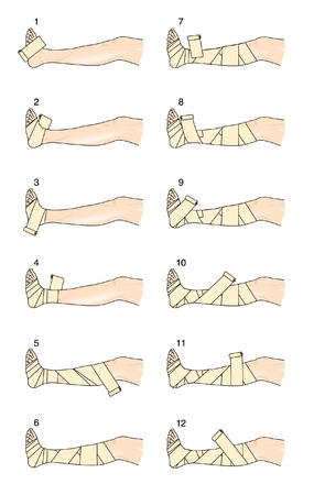 stasis: The steps required to apply a Putter leg bandage for venous oedema, leg ulcers and thrombophlebitis