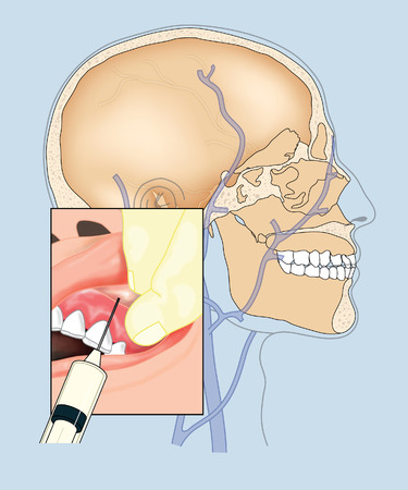 cranial: Drawing to show a patient having a gum injection prior to dentistry, with overview of the skull and cranial blood vessels Stock Photo