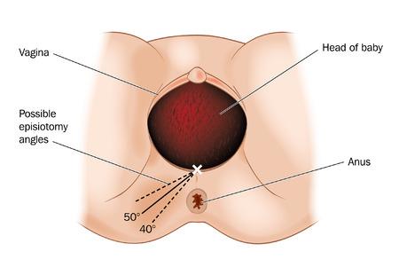 Dibujo de los posibles �ngulos de episiotom�as realizadas durante el parto Vectores