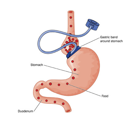 oesophagus: Drawing of bariatric surgery, showing a gastric band placed at the head of the stomach