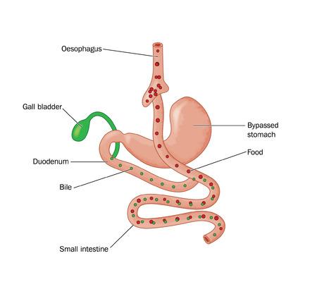 small intestine: Dibujo de la cirug�a bari�trica, que muestra un BGYR operaci�n de bypass g�strico Roux-en-Y, donde se desv�a de alimentos desde el es�fago directamente con el intestino delgado Vectores