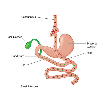 oesophagus: Drawing of bariatric surgery, showing a Roux-en-Y gastric bypass operation  RYGB  where food is diverted from the oesophagus directly to the small intestine Illustration