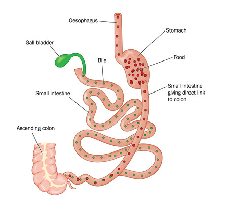 Drawing of bariatric surgery, showing a duodenal switch operation where a small gastric pouch is connected to the large intestine via the duodenum