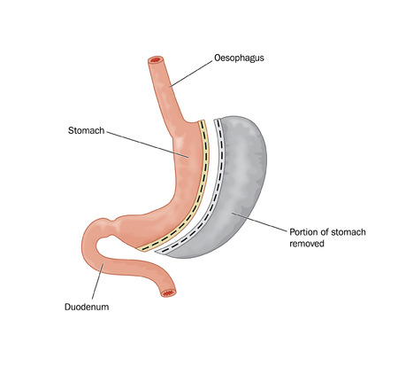 Drawing of bariatric surgery, showing half the stomach removed and the remaining stomach stapled, resulting in a reduction in gastric volume