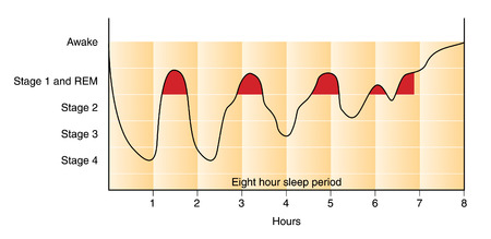 Graph of the stages of sleep during an 8 hour sleep period, from awake, through stage 2 and REM sleep, down to stage 4