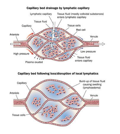 Dessin de montrer un lit capillaire normale avec le drainage lymphatique et un lit capillaire ?dème suite à la perte ou la perturbation du drainage lymphatique