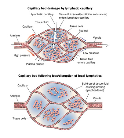 Drawing to show a normal capillary bed with lymph drainage and an oedematous capillary bed following loss or disruption of lymph drainage Illustration
