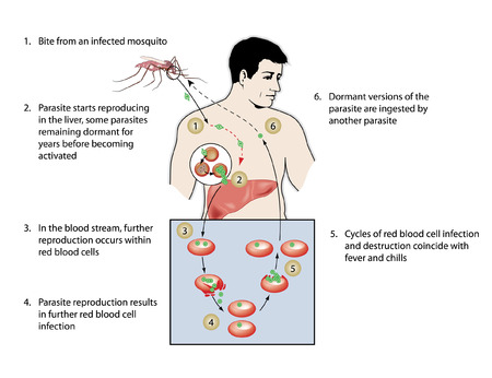 Malaria infection, from mosquito bite through parasite reproduction in liver, in blood stream, to dormant parasites ingested by another mosquito Stock Illustratie
