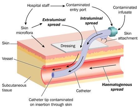 bacterial infection: Disegno di pelle, vasi sanguigni e cannula, con dettaglio di come una infezione batterica pu� diffondersi dalla cannula al sangue