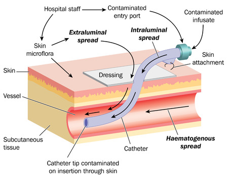 Drawing of skin,blood vessel and cannula, with detail of how a bacterial infection can spread from the cannula to the blood