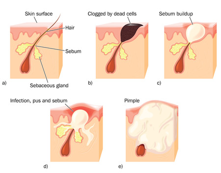 Drawing to show the stages of pimple formation, showing a clogged hair duct, sebum build up, infection and pus formation  Illustration
