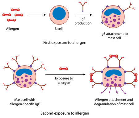 b cell: Mast cell reaction to primary and secondary exposure to an allergen, showing IgE attachment and degranulation of vasoactive amines
