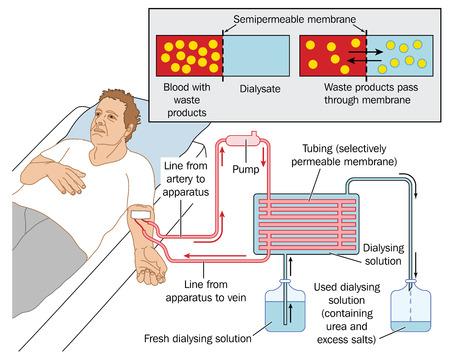 Hoe bloed dialyse werkt, geeft een patiënt aangesloten op een bloedpomp, semipermeabel membraan en dialyse-oplossing.