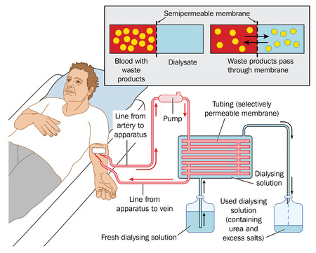 dialysis: How blood dialysis works, showing a patient connected to a blood pump, semipermeable membrane and dialysis solution.