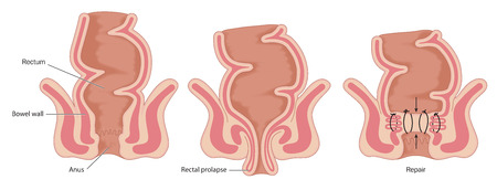operative: Rectal prolapse operation, showing normal bowel anatomy, prolapsed rectum and rectal repair. Created in Adobe Illustrator.  Contains transparencies.  EPS 10.