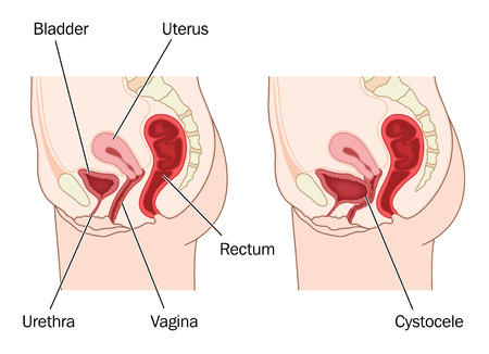 Drawing to show normal female abdominal anatomy and a prolapsed bladder, resulting in a cystocele. Created in Adobe Illustrator.  Contains transparencies.  EPS 10. Illustration