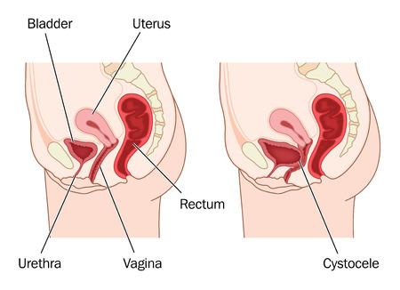 Dibujo para mostrar la anatom�a femenina normal abdominal y una vejiga prolapsada, resultando en un cistocele. Creado en Adobe Illustrator. Contiene transparencias. EPS 10.