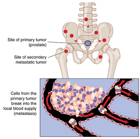 Metastatic carcinoma showing secondary tumor spread to the pelvis and spine from a primary tumor in the prostate. Illustration