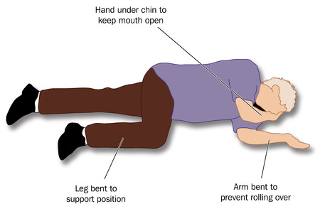 recovery position: Patient placed in the recovery position to ensure a clear airway for adequate breathing and to prevent inhalation of vomit. Illustration