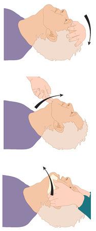 patente: Posici�n de la cabeza de una v�a a�rea permeable abierta en preparaci�n para t�cnicas de ventilaci�n. Creado en Adobe Illustrator. EPS 10. Vectores