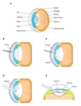 정상 눈 백내장 렌즈를 도시 백내장 수술. 제거 수술 절차가 도시되어있다. 어도비 일러스트 레이터에서 만든. 투명 그라디언트 망을 포함합니다. 10 EPS