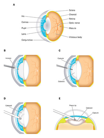vitreous body: Cataract operation, showing a normal eye and a lens with a cataract.  The procedure for surgical removal is shown. Created in Adobe Illustrator.  Contains transparencies and gradient meshes.  EPS 10.