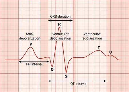 주요 간격을 나타내는 심장 심전도 (EKG).
