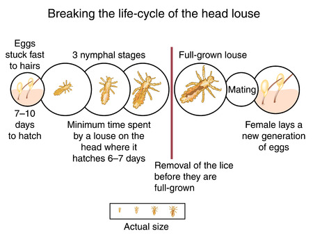 Breaking the life cycle of the head louse by wet combing before the lice are full grown. Created in Adobe Illustrator.  Contains gradient meshes.  EPS 10. Illustration