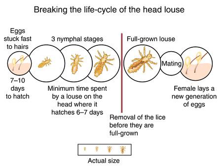 piojos: Romper el ciclo de vida del piojo de la cabeza por el peinado en húmedo antes de que los piojos se cultivan completo. Creado en Adobe Illustrator. Contiene mallas de degradado. 10 EPS.