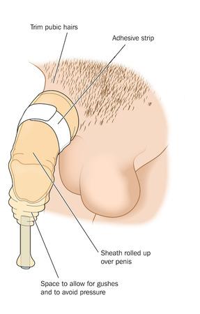 pene: Guaina per la raccolta delle urine nei pazienti di sesso maschile. Creato in Adobe Illustrator. Contiene lucidi. EPS 10.
