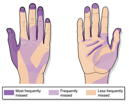 Areas of the hands frequently missed when cleaning. Created in Adobe Illustrator.  Contains transparencies.  EPS 10. 일러스트