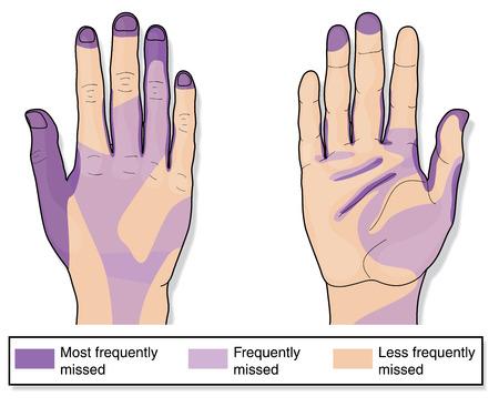 lavarse las manos: Áreas de las manos perdidas con frecuencia durante la limpieza. Creado en Adobe Illustrator. Contiene transparencias. 10 EPS.