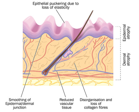 Old skin, showing changes due to aging, including epithelial puckering and reduced collagen and vascular tissue. Created in Adobe Illustrator.  Contains transparencies.  EPS 10. Illustration