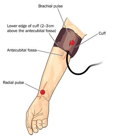 Drawing of blood pressure cuff on arm, over the brachial pulse. Created in Adobe Illustrator.  Contains gradients.  EPS 10. Vettoriali