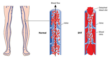 Drawing showing deep vein thrombosis in leg veins. Created in Adobe Illustrator.  EPS 10.