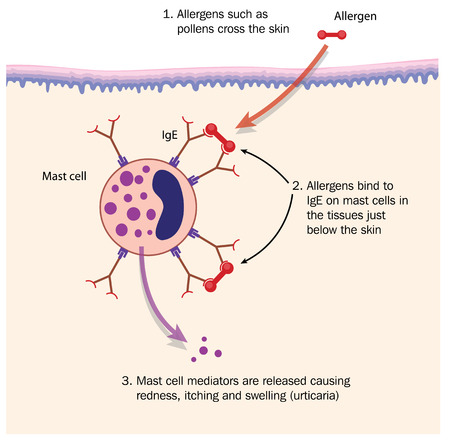 Mechanism of hay fever showing pollen allergen binding to IgE on mast cell in the skin. Created in Adobe Illustrator.  Contains transparencies.  EPS 10.