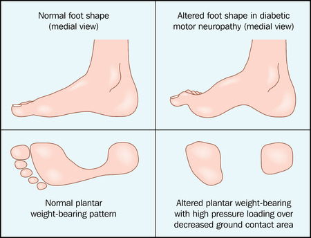 Altered shape of the foot caused by diabetic motor neuropathy.