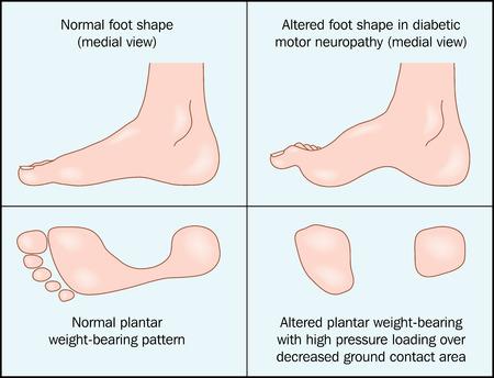 fu�sohle: Ver�nderte Form des Fu�es von diabetischen motorische Neuropathie verursacht. Illustration