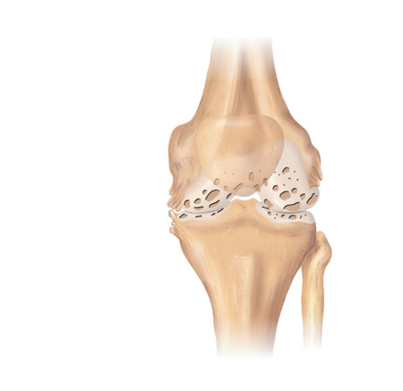Osteoarthritic knee joint showing cartilage erosion