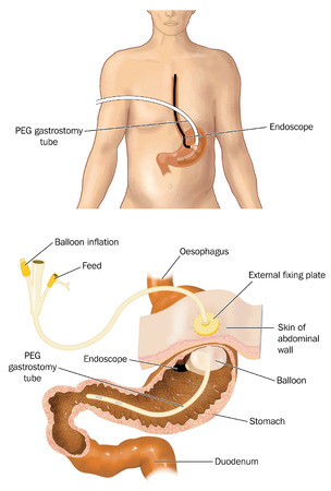 Drawing of a PEG tube percutaneous endoscopic gastrostomy with cross section of stomach showing the tube in place. Stock Photo